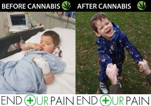 Charlie Hughes -before and after treatment